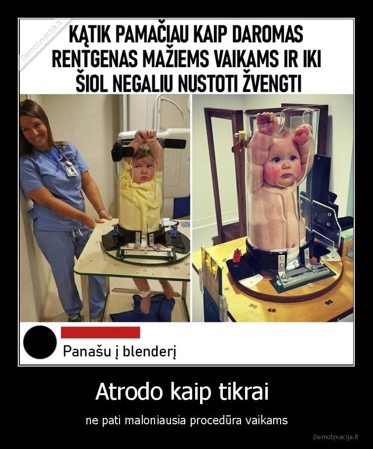 Atrodo kaip tikrai ne pati maloniausia procedura vaikams