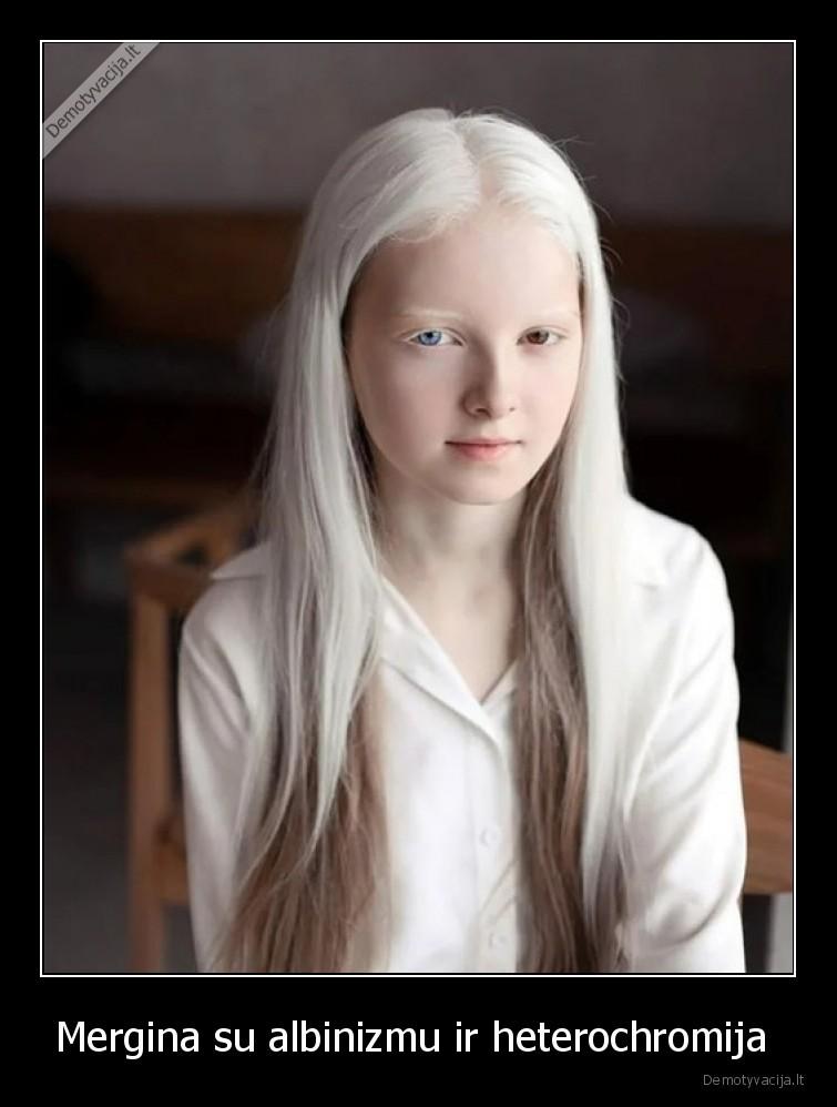 Mergina su albinizmu ir heterochromija