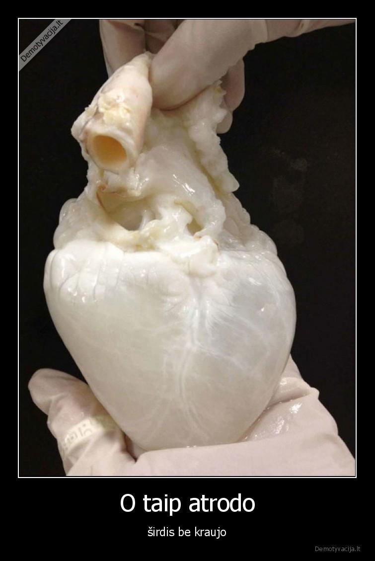 O taip atrodo sirdis be kraujo
