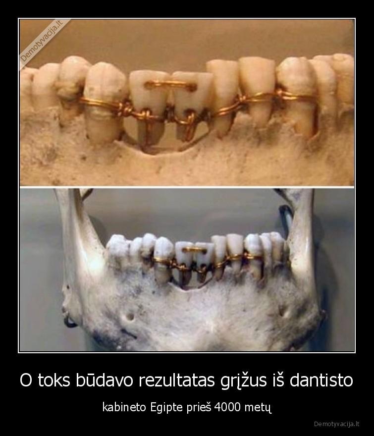 O toks budavo rezultatas grizus is dantisto kabineto Egipte pries 4000 metu