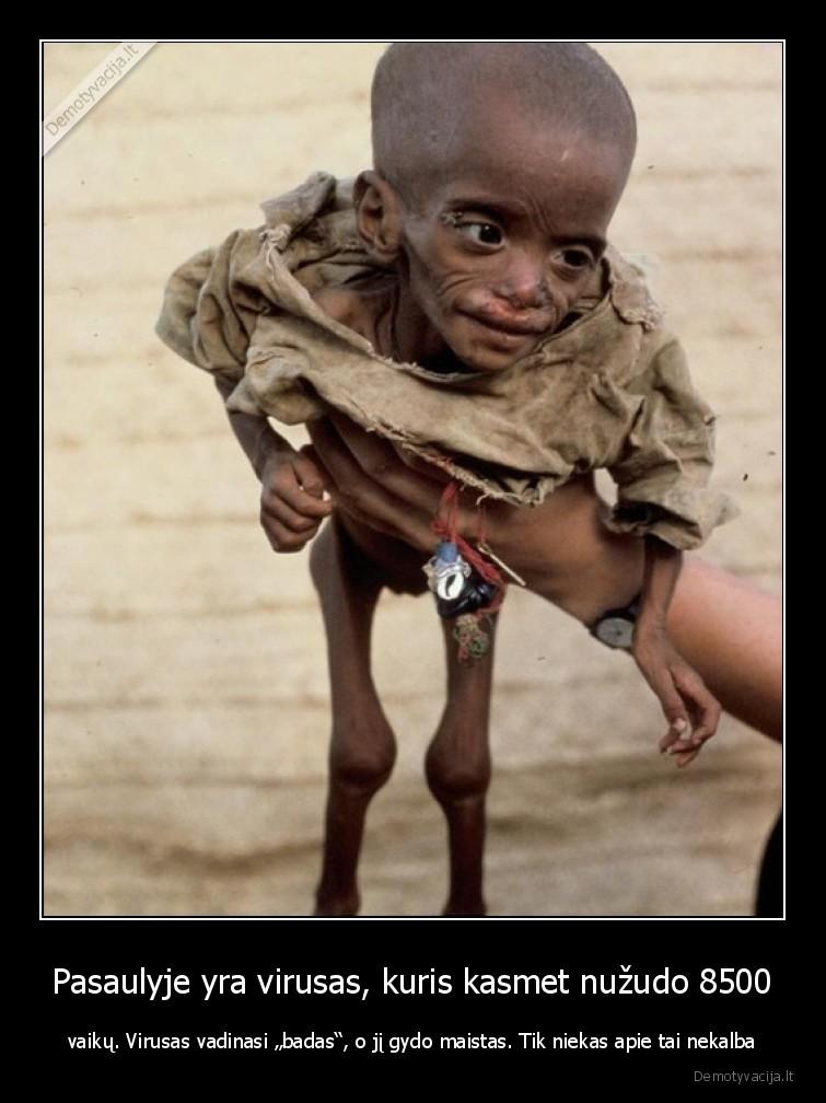 Pasaulyje yra virusas kuris kasmet nuzudo 8500 vaiku. Virusas vadinasi badas o ji gydo maistas. Tik niekas apie tai nekalba